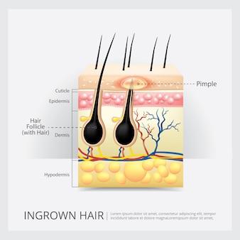 Estructura del cabello encarnada