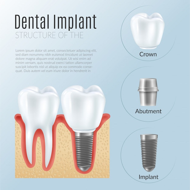Estructura de la infografía de prótesis dental.