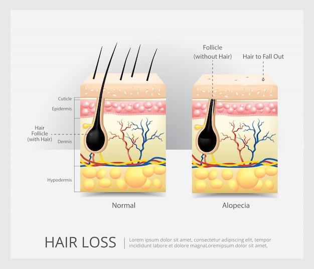 Estructura de la pérdida del cabello ilustración vectorial