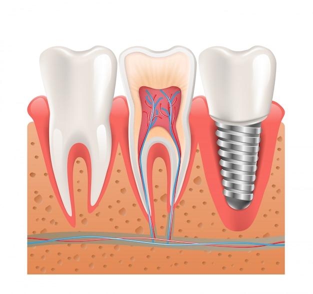 Estructura realista de los dientes sana implante dental
