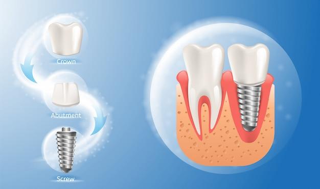 Estructura realista de la imagen del implante dental.