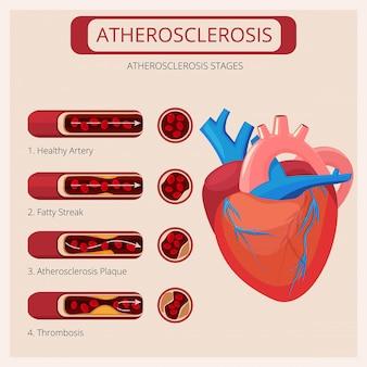 Etapas de la aterosclerosis. golpes de corazón ataque de trombo sistema circulatorio de sangre vector infografía médica