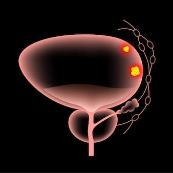 Etapas del cáncer de vejiga. cartel anatómico realista 3d.