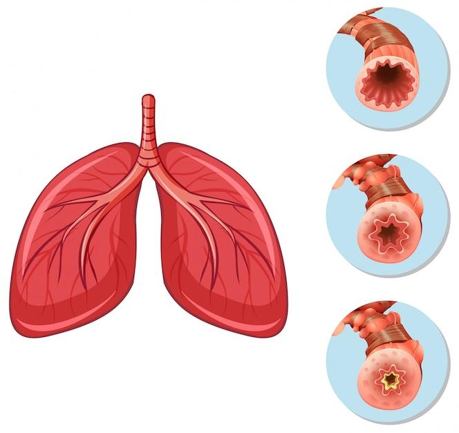 Etapas de obstrucción de las vías respiratorias a los pulmones