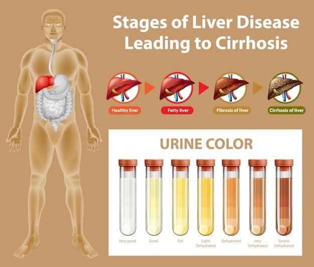 Etapas de la enfermedad hepática que conducen a la cirrosis
