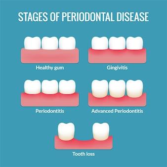 Etapas de la enfermedad periodontal desde encías sanas hasta gingivitis, periodontitis y pérdida de dientes. tabla de infografía médica moderna.