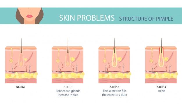 Etapas de la formación de acné en la piel humana.