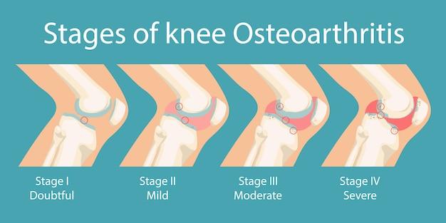 Etapas de la osteoartritis de la osteoartritis de rodilla humana