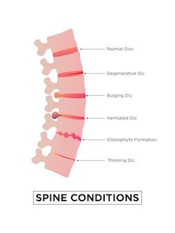 Etapas de la osteocondrosis espinal