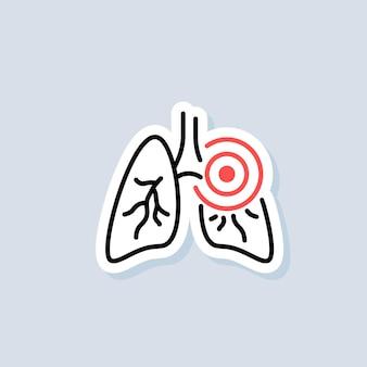 Etiqueta engomada de los pulmones. icono de neumonía. inflamatorio en los pulmones. asma o tuberculosis. vector sobre fondo aislado. eps 10.