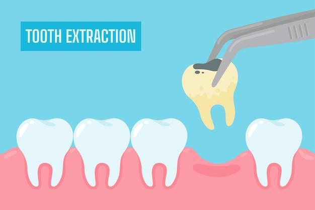 Extracción de dientes. dibujos animados de dientes amarillos con sarro y placa eliminada de la cavidad bucal.