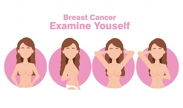 Figuras de mujeres con cáncer de mama