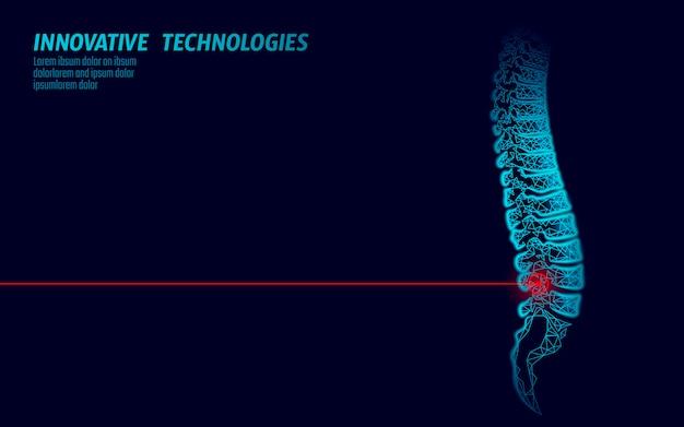 Fisioterapia con láser, lesión de la columna humana. operación de cirugía de área de dolor tecnología de medicina de lomo moderno triángulos de baja poli 3d render ilustración de hernia de espalda femenina