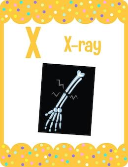 Flashcard del alfabeto con la letra x para rayos x