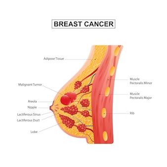 Formación de la anatomía de la mama femenina de la ilustración de vector de cáncer de mama