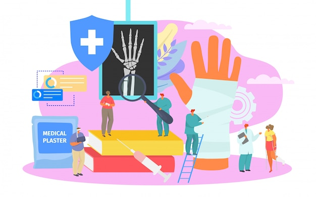 Fractura ósea, tratamiento médico profesional, ilustración. atención de ortopedia en el hospital, fractura de hueso en yeso.
