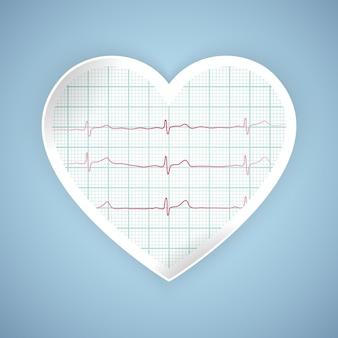 Gráfico de pulso cardíaco. latido de ecg