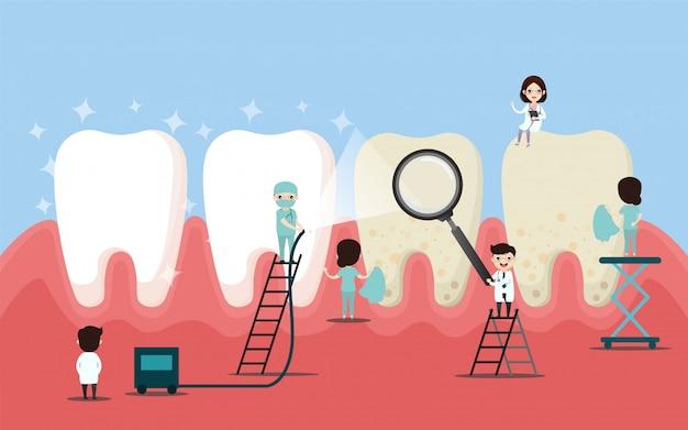 Grupo de pequeños dentistas están cuidando un diente grande. ilustración de vector de personaje dental.