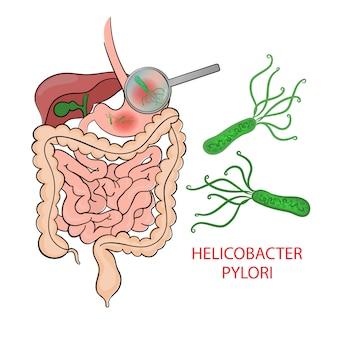 Helicobacter pylori medicina educación