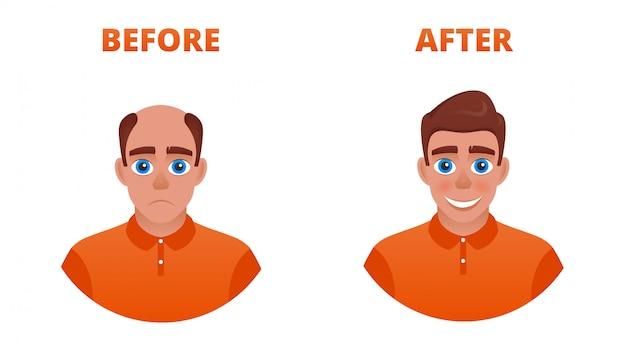 Hombre calvo tras trasplante capilar. el resultado del uso de minoxidil. usando una peluca
