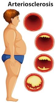 Hombre gordo y arteriosclerosis