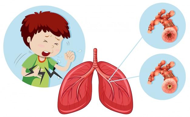 Un hombre que tiene enfermedad pulmonar obstructiva crónica