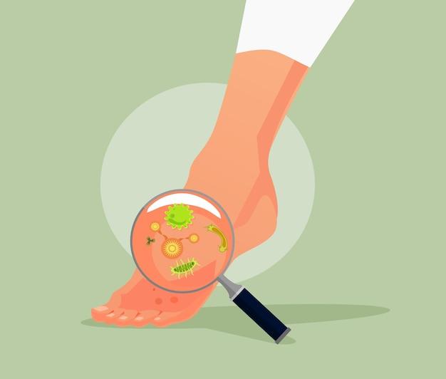 Hongos en los pies. ilustración de dibujos animados plano de vector