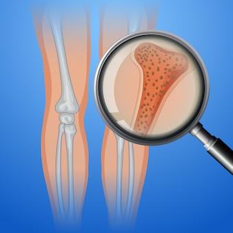 Hueso humano con osteoporosis