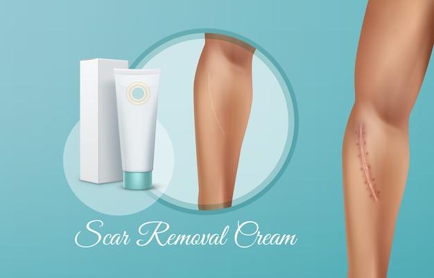 Ilustración de anuncios de crema para eliminar cicatrices en tubo con embalaje, comparación de heridas frescas y curadas en la mano del hombre después de la operación