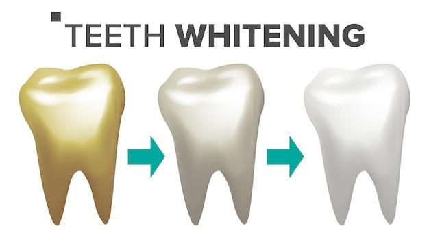 Ilustración de blanqueamiento dental