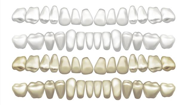 Ilustración del conjunto de dientes