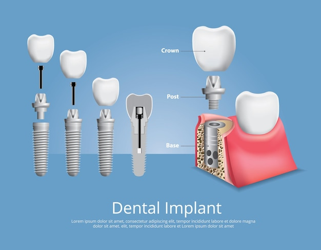 Ilustración de dientes humanos e implantes dentales
