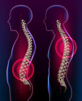Ilustración del dolor de espalda como concepto de atención médica para la salud y la terapia de la columna vertebral