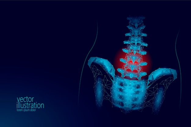 Ilustración de dolor de radiculitis lumbar de cadera de columna 3d humana