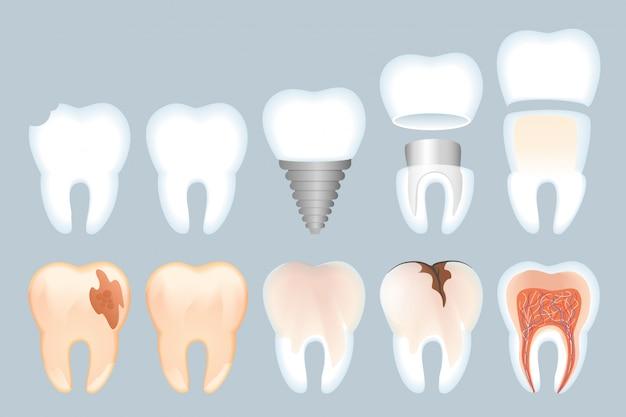 Ilustración de estructura de diente realista