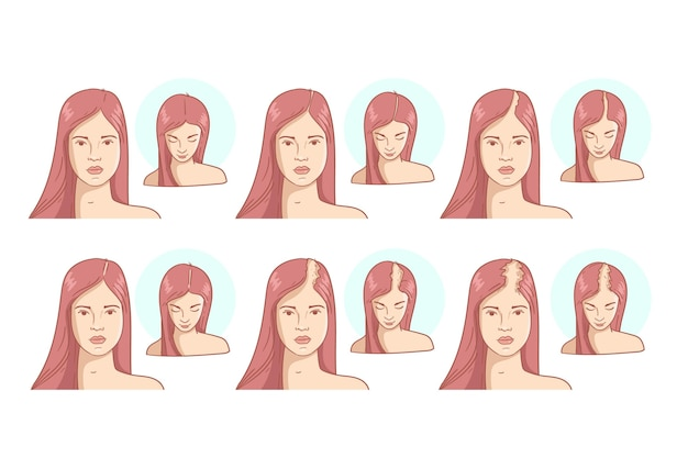 Ilustración de etapas de pérdida de cabello dibujado a mano plana