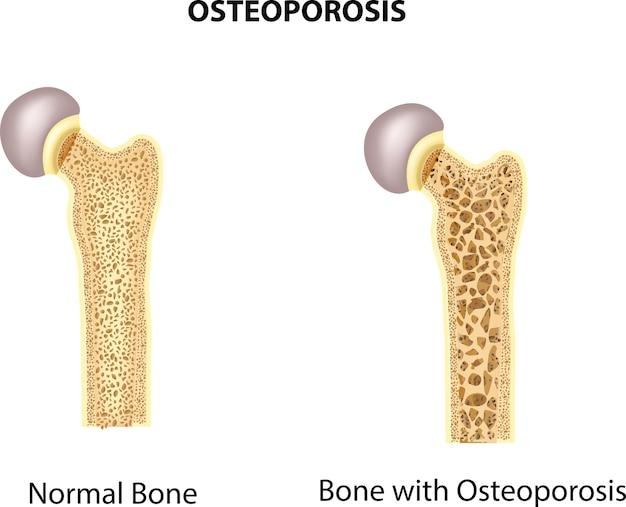Ilustración del hueso de la cadera