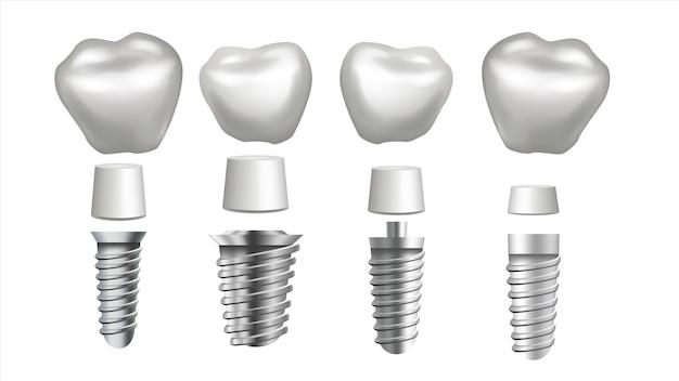 Ilustración de implante dental