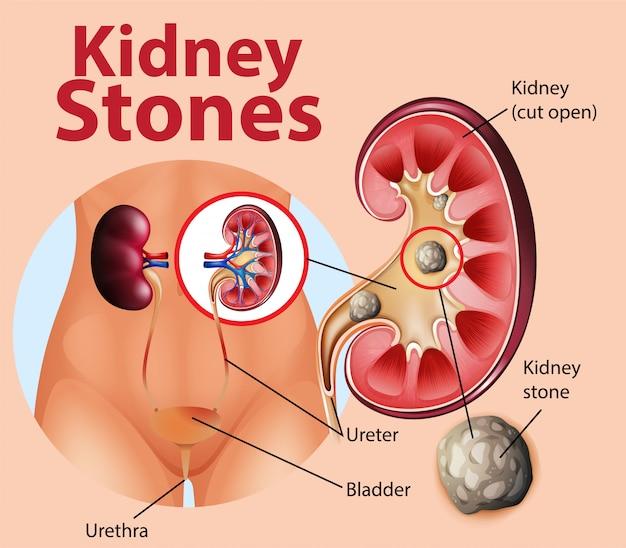 Ilustración informativa de cálculos renales