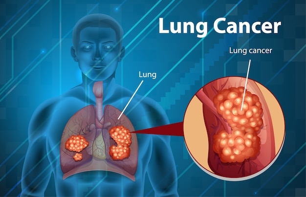 Ilustración informativa del cáncer de pulmón.