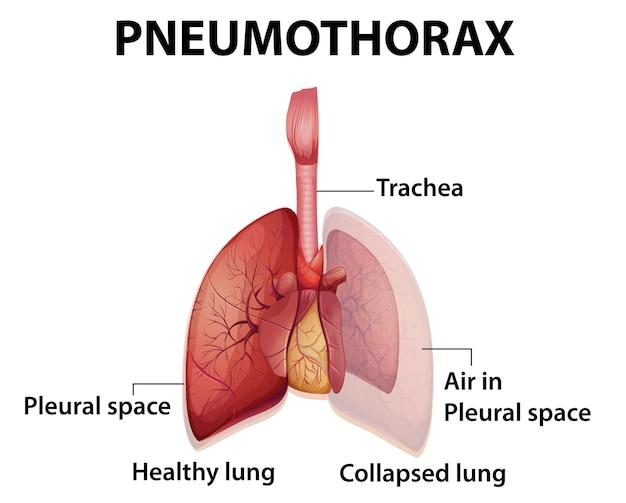 Ilustración informativa de neumotórax