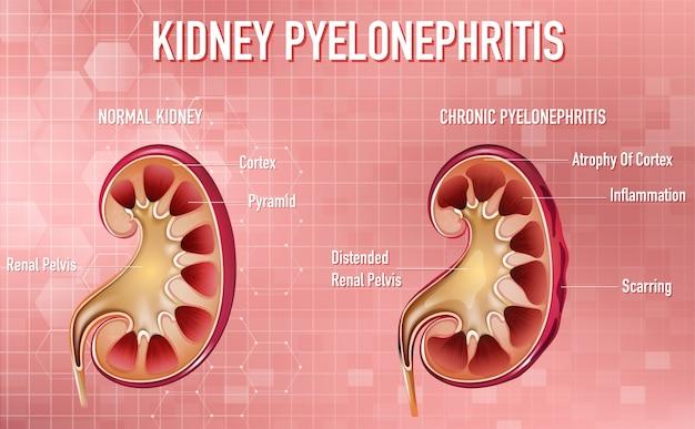 Ilustración informativa de pielonefritis