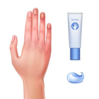Ilustración de la mano lesionada y el tubo de gel para hematomas con una gota de crema