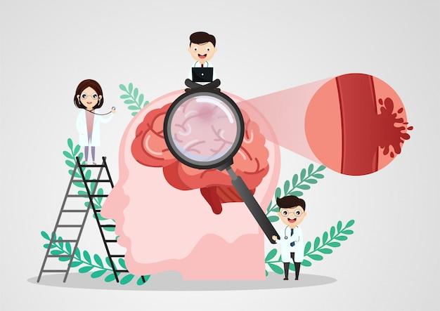 Ilustración médica científica del accidente cerebrovascular humano