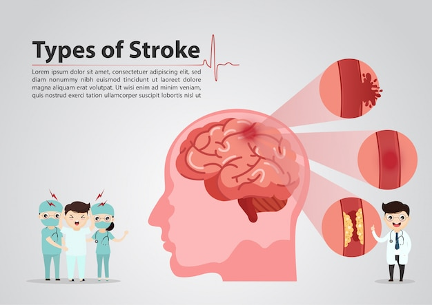 Ilustración médica científica de accidente cerebrovascular humano