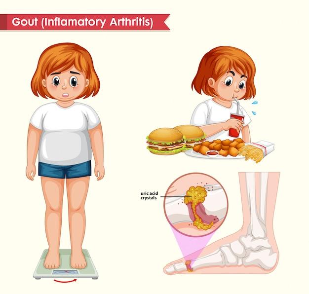 Ilustración médica científica de la artritis de gota