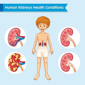 Ilustración médica científica de la enfermedad renal.