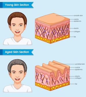 Ilustración médica científica de piel joven y envejecida