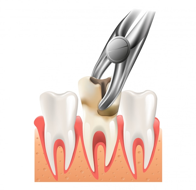 Ilustración realista de la cirugía dental en 3d vector