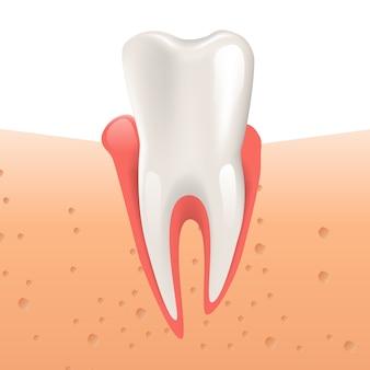 Ilustración realista gingivitis diente sano